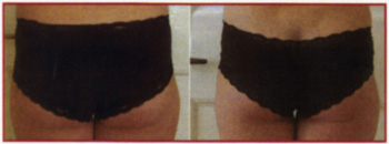 Srawberry Laser Lipo Before_after 1