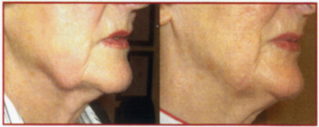 Facial Jowls after 6 treatments